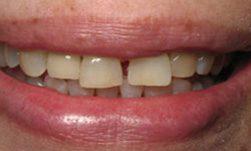 Implants 2 Aberdeen, SD Dentist | Aberdeen Smiles