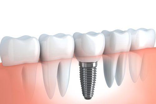 Dental Implants Rebuild Smiles