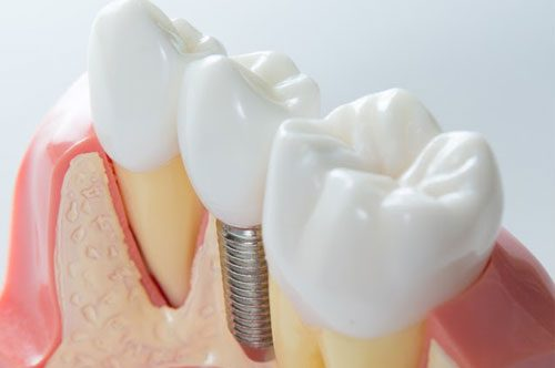 Changing Lives With Dental Implants