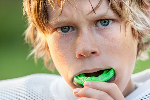 Custom-Fit Your Sports Mouthguard Today [Infographic]